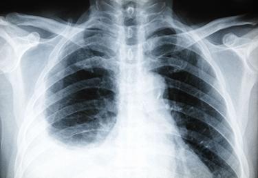 Lastra radiografica di pleurite