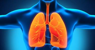infiammazione polmonare