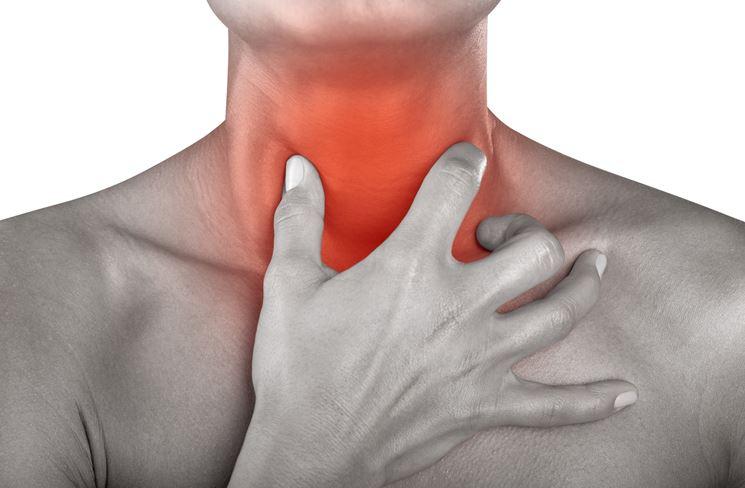Sintomi tonsillite