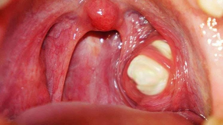 Placca tonsilla destra