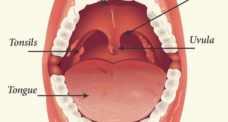 Tonsille adenoidi