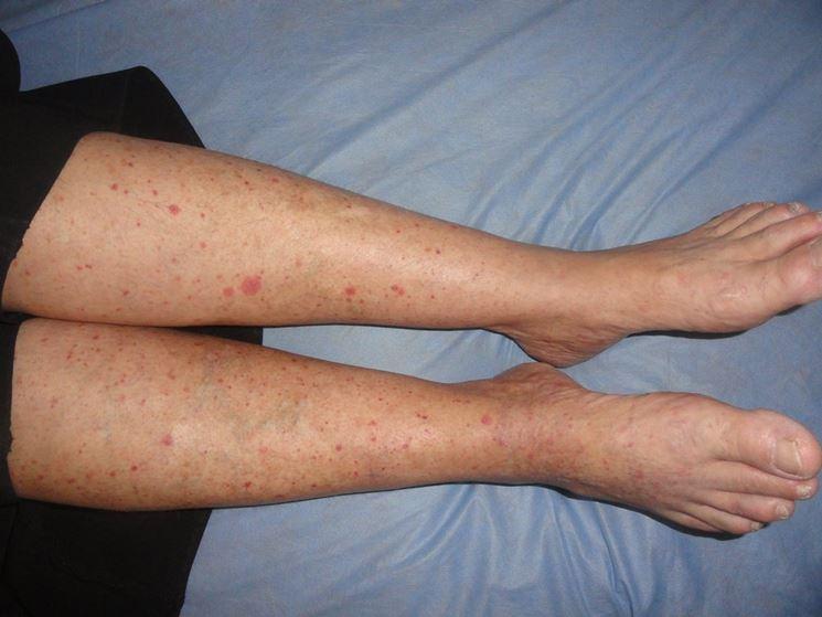 Vasculite gambe