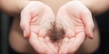 Grave alopecia areata