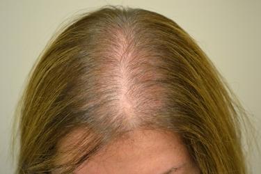 Caduta di capelli femminile