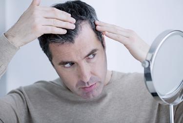 Inizio dell'alopecia androgenetica