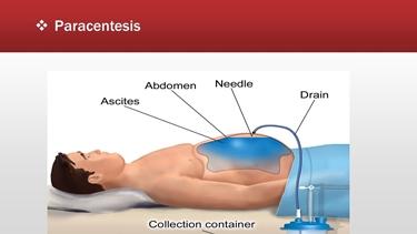 Terapia dell'ascite