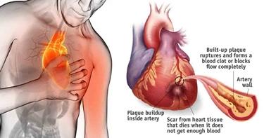 Infarto del miocardio
