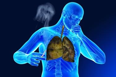 Fumo che ostruisce le vie respiratorie
