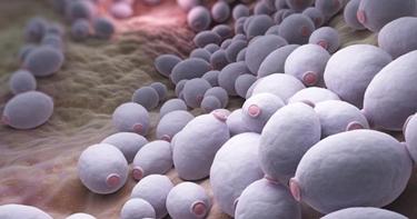 La perdita delle difese immunitarie causa la proliferazione della candida orale