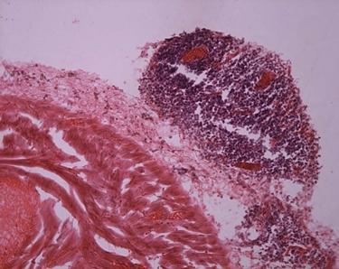 Tessuti connettivi infiammati