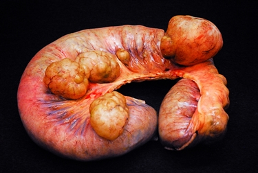 Intestino con grossi diverticoli