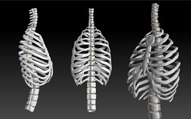 Gabbia toracica e colonna vertebrale