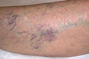 A quello che fa unanestesia allatto di operazione a varicosity di gambe