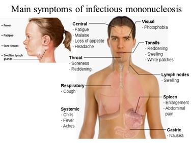 Principali sintomi della mononucleosi infettiva