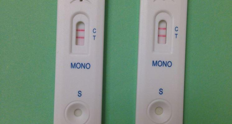 Il test rapido della mononucleosi