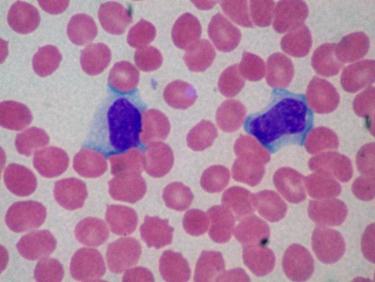 Striscio di sangue con linfociti B (in blu).<p />