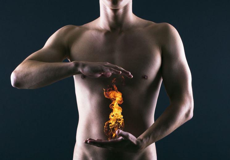 Bruciore stomaco