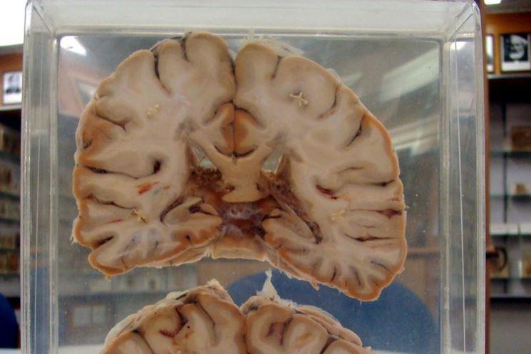 Il cervello e la sclerosi multipla