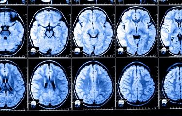 Risonanza magnetica al cervello<p />