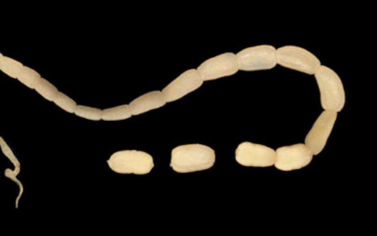 Corpo ad anelli di una tenia