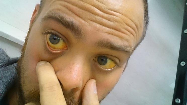 Ittero sintomo epatite