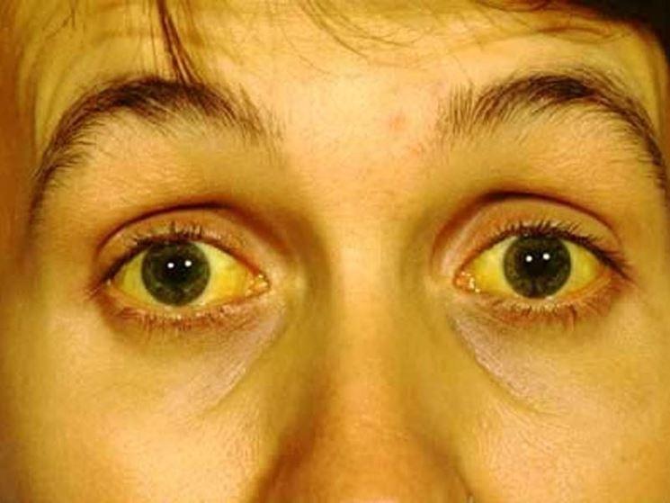 Epatite pelle gialla