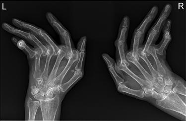 Eficiente medicamente pentru tratamentul herniei spinale