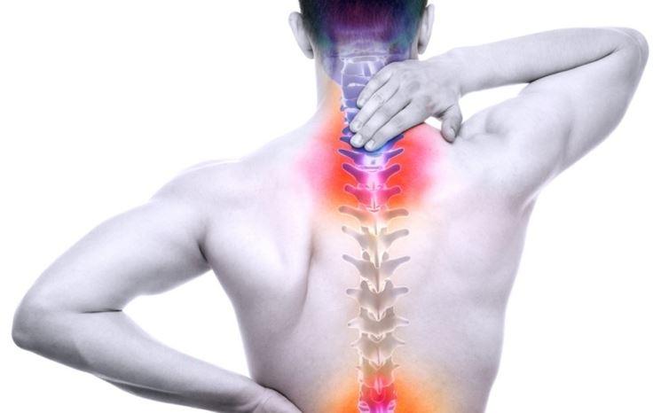 Artrite, dolori dorsali