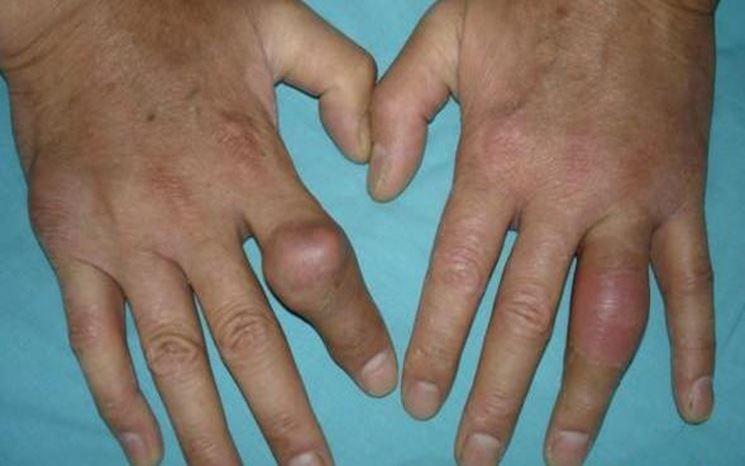 Artrite, malformazioni dita