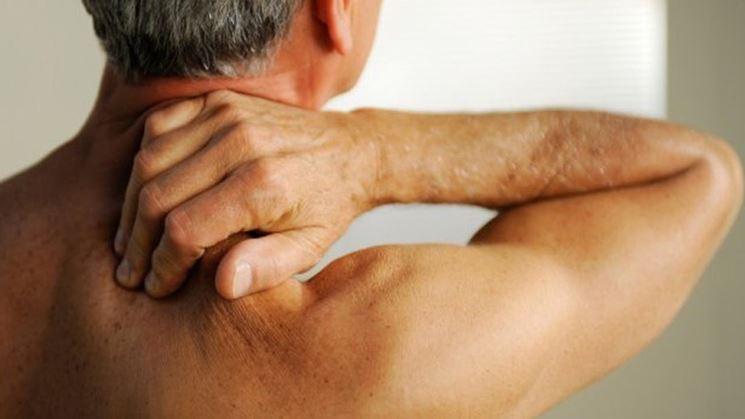 Dolori artrosi cervicale