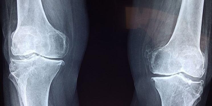 Radiografia ginocchio