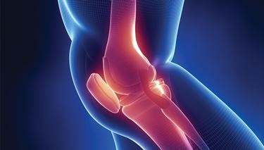 Cartilagine ginocchio danneggiata