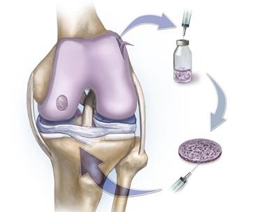 cura cartilagine ginocchio