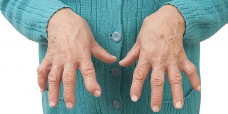 Mani artrite