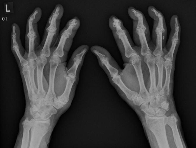 Radiografie connettivite