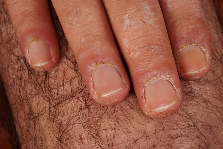 Sindrome raynauds