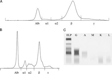Grafico dell'elettroforesi proteica
