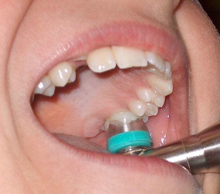 Ozono terapia odontoiatria