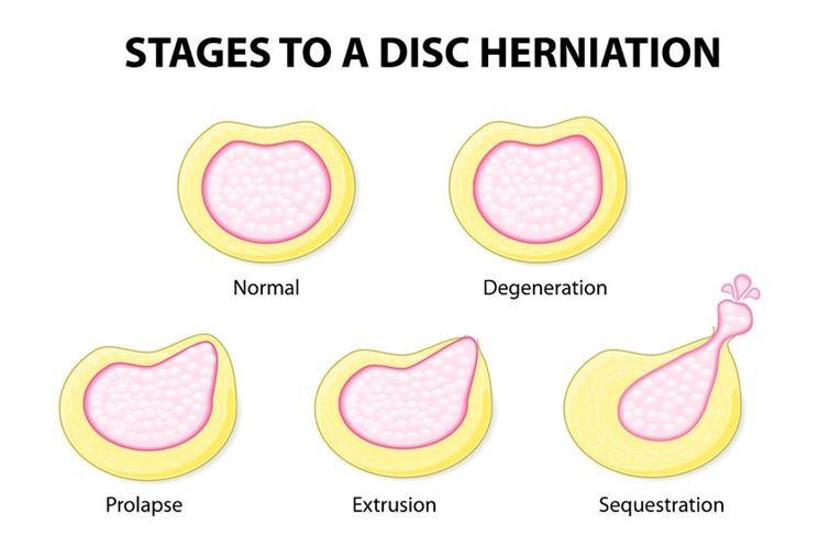 Protusione discale