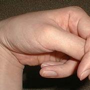Formicolio alla mano