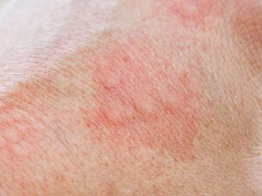 Arrossamento temporaneo della pelle dopo la TENS