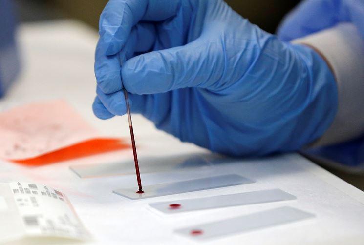 Esami del sangue in vitro