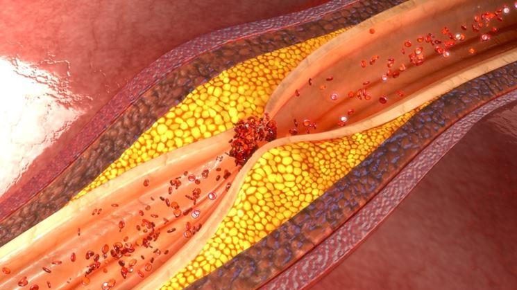 Benefici colesterolo