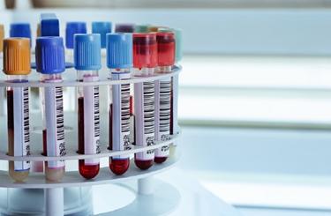 esami del sangue per mioglobina