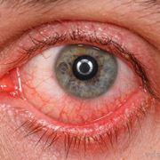 Conseguenze dell'ipertensione sugli occhi