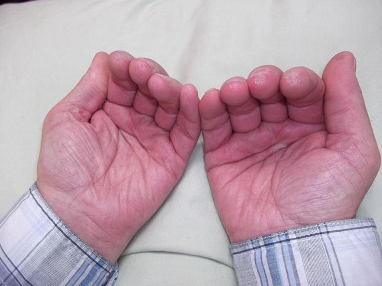 Persona con la sindrome di Raynaud